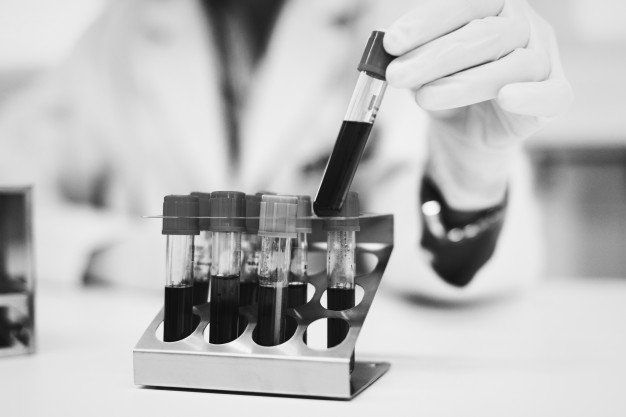 Laboratorijske analize