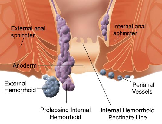 """unutrasnji i spoljasnji hemoroidi """"dr Draskovic"""""""